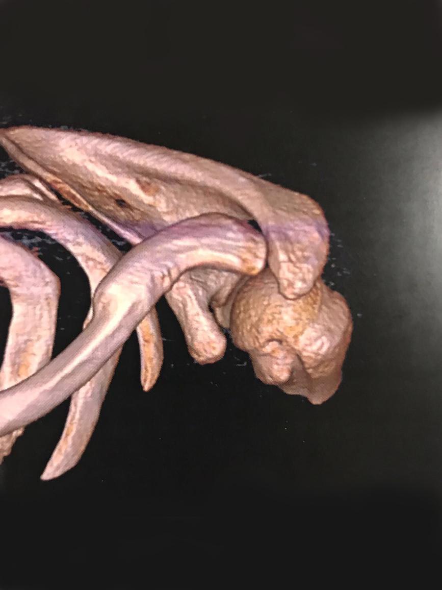 Evolución fractura de clavícula.