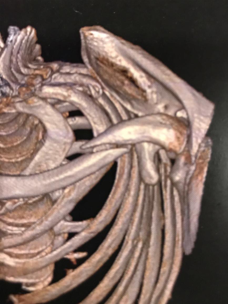 Evolución de fractura de clavícula.