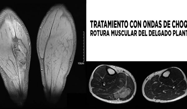ondas de choque y rotura muscular